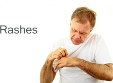 Black-Mold-Related-Rashes