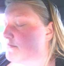 skin-rash-mold